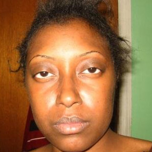 My Story: Cheryl Walker